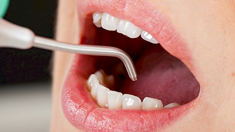 Remove tartar (Zahnsteinentfernen) helps the person not suffer from bad breath and not suffer from a very embarrassing experience